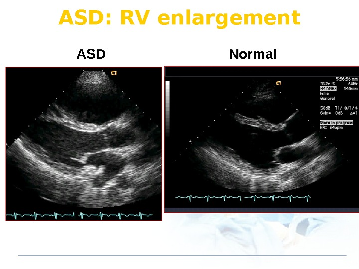 ASD: RV enlargement ASD Normal