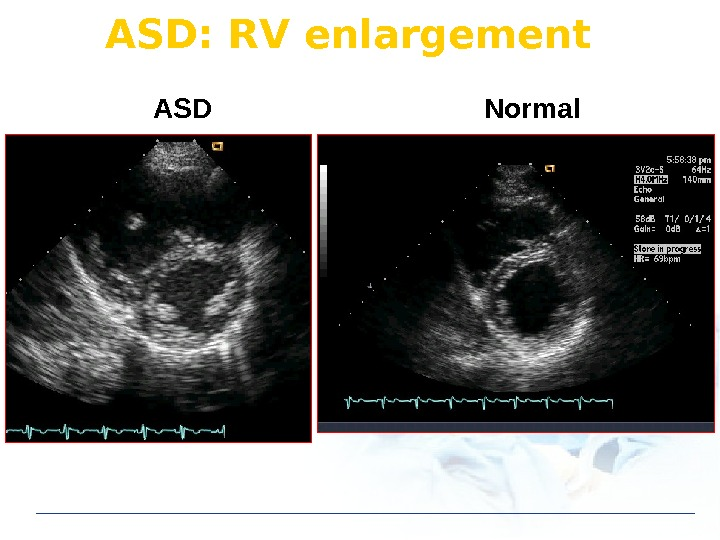 ASD Normal. ASD: RV enlargement