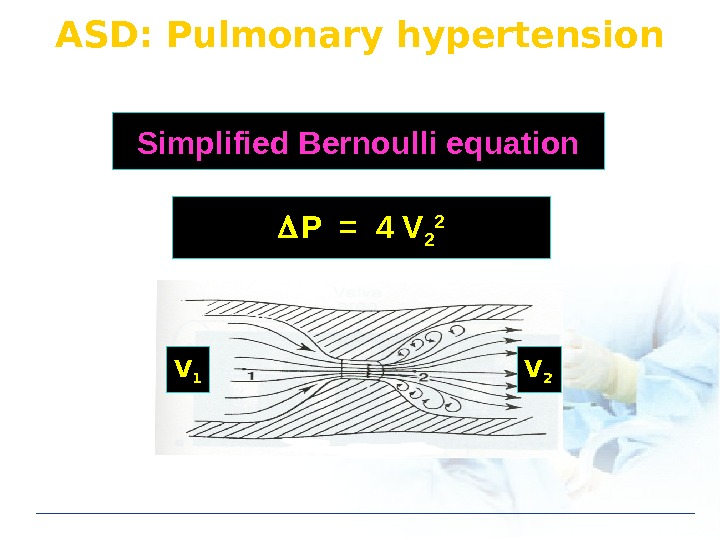 ASD: Pulmonary hypertension P = 4 V 2 2 Simplified Bernoulli equation V 1 V 2
