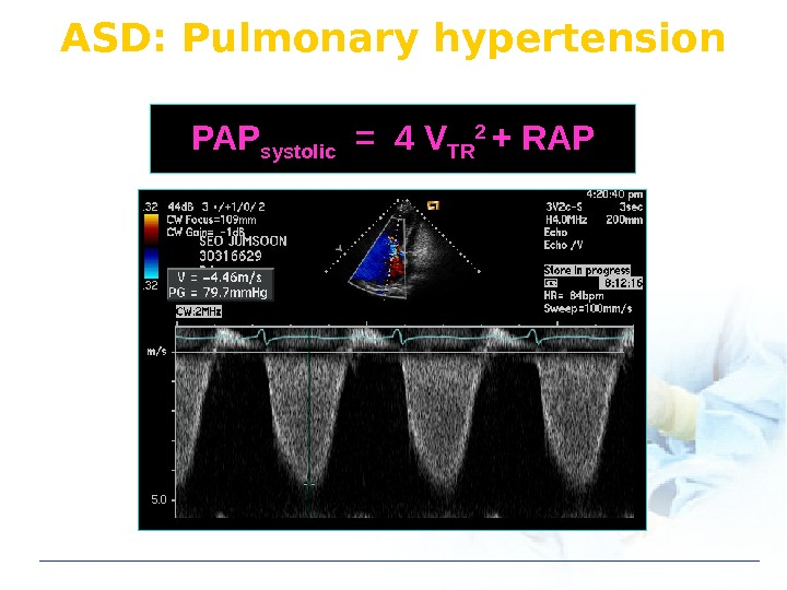ASD: Pulmonary hypertension PAP systolic  = 4 V TR 2 + RAP