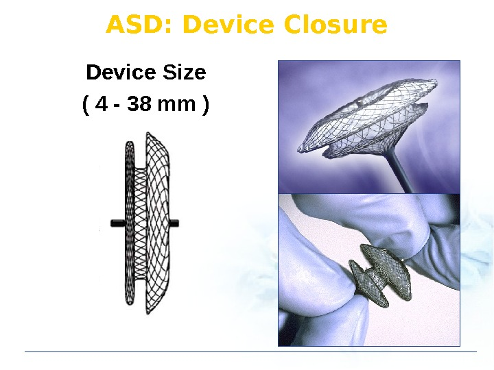 Device Size ( 4 - 38 mm ) ASD: Device Closure