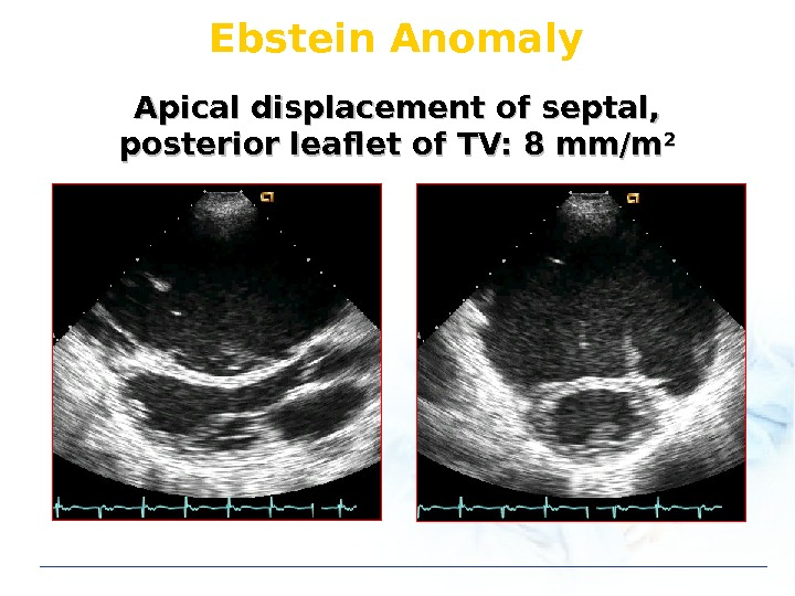 Ebstein Anomaly Apical displacement of septal,  posterior leaflet of TV: 8 mm/m 22