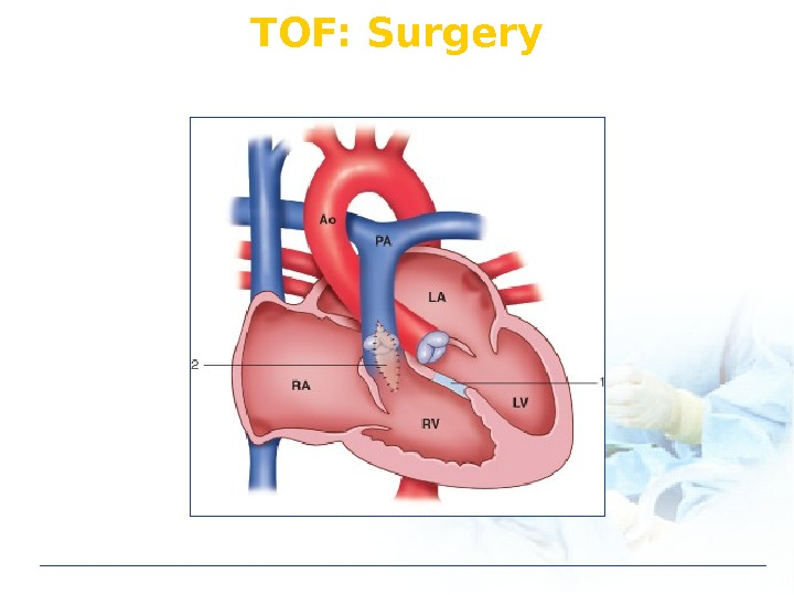 TOF: Surgery