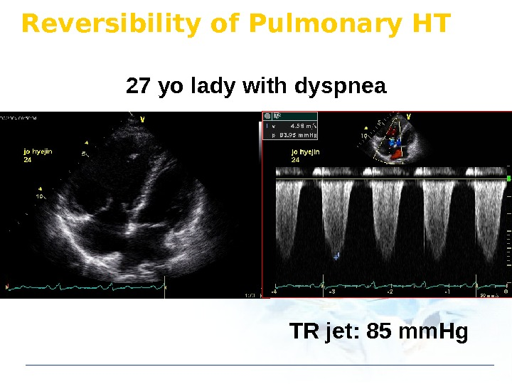Reversibility of Pulmonary HT 27 yo lady with dyspnea TR jet: 85 mm. Hg