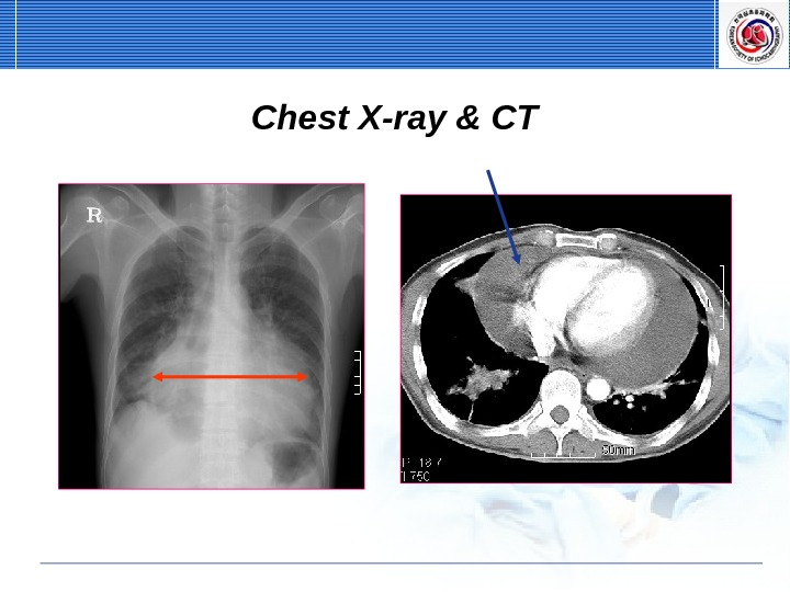 Chest X-ray & CT