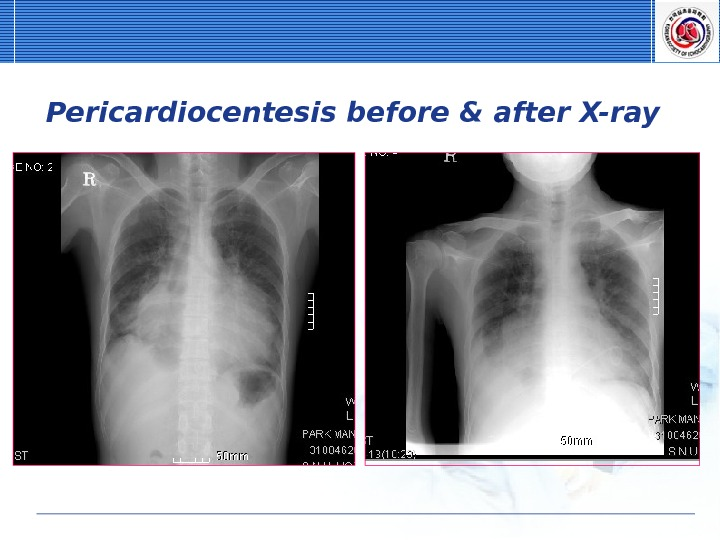 Pericardiocentesis before & after X-ray