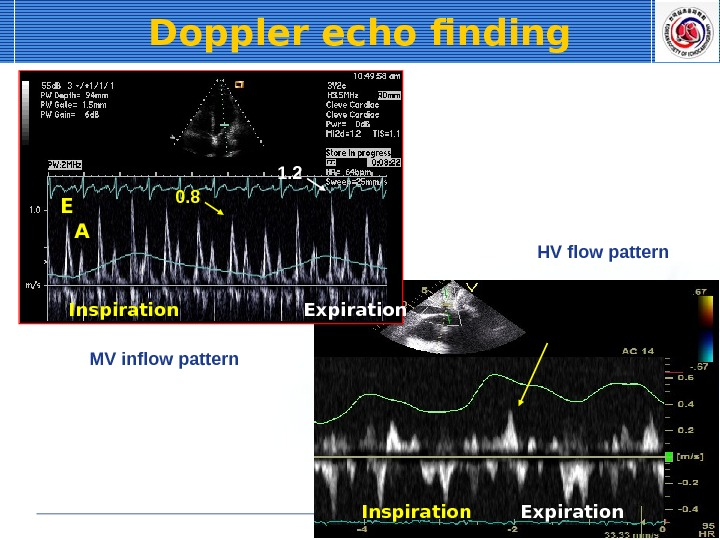 Doppler echo finding E A 0. 8 1. 2 Inspiration Expiration. MV inflow pattern HV flow