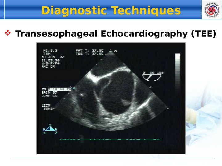 Diagnostic Techniques  Transesophageal Echocardiography (TEE)