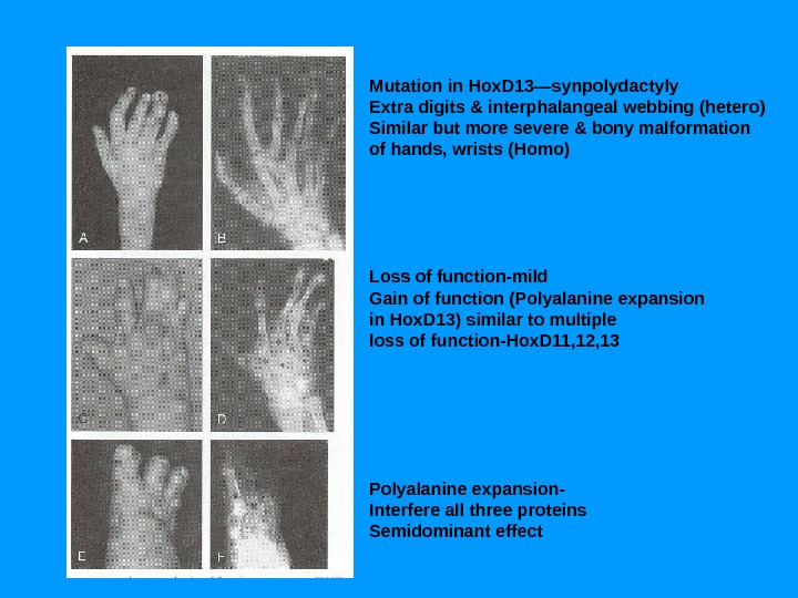 Mutation in Hox. D 13—synpolydactyly Extra digits & interphalangeal webbing (hetero) Similar but more severe &