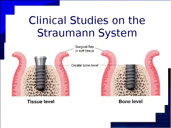 Clinical Studies on the Straumann System