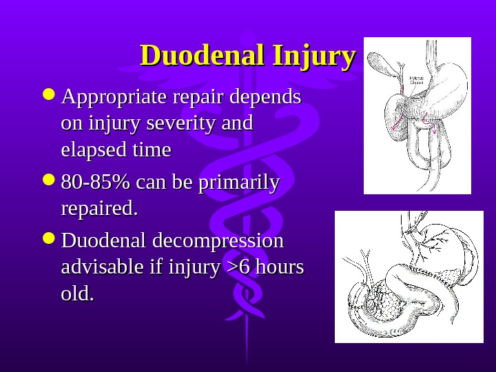 Duodenal Injury Appropriate repair depends on injury severity and elapsed time 80-85% can be primarily