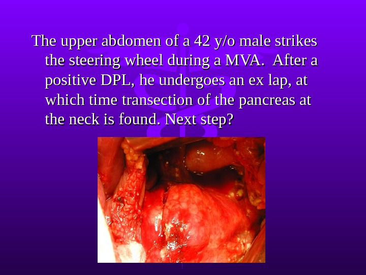 The upper abdomen of a 42 y/o male strikes the steering wheel during a MVA.