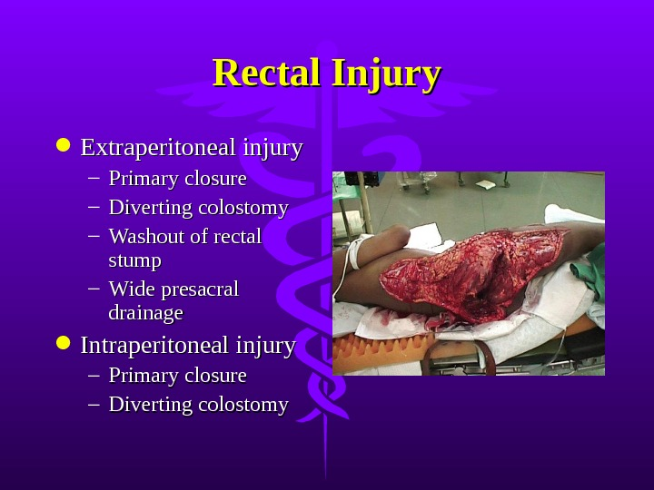 Rectal Injury Extraperitoneal injury – Primary closure – Diverting colostomy – Washout of rectal stump