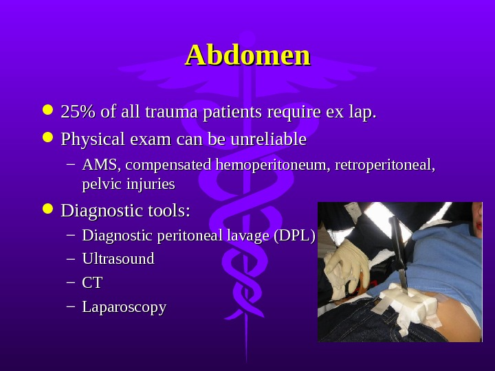 Abdomen 25% of all trauma patients require ex lap.  Physical exam can be unreliable