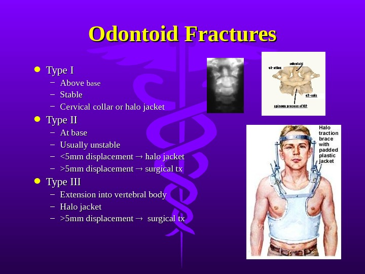 Odontoid Fractures Type I – Above base – Stable – Cervical collar or halo jacket