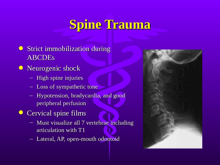 Spine Trauma Strict immobilization during ABCDEs Neurogenic shock – High spine injuries – Loss of