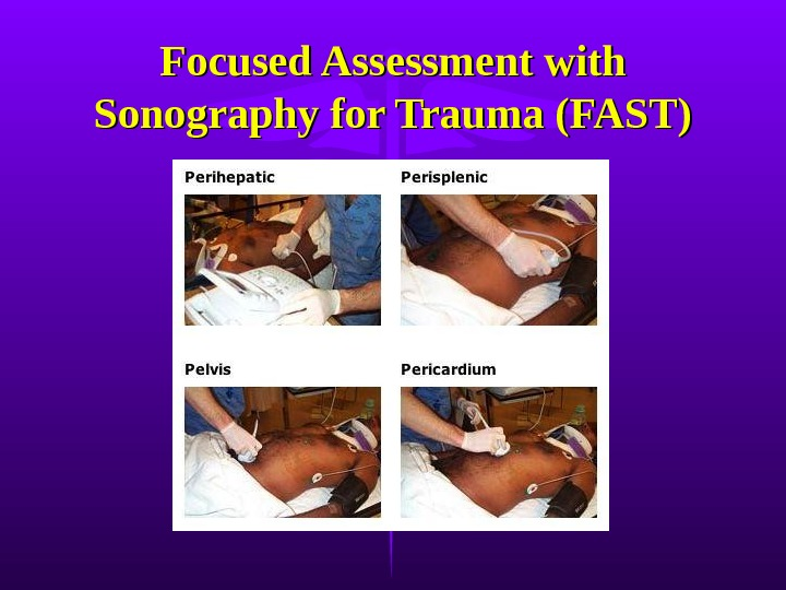 Focused Assessment with Sonography for Trauma (FAST)