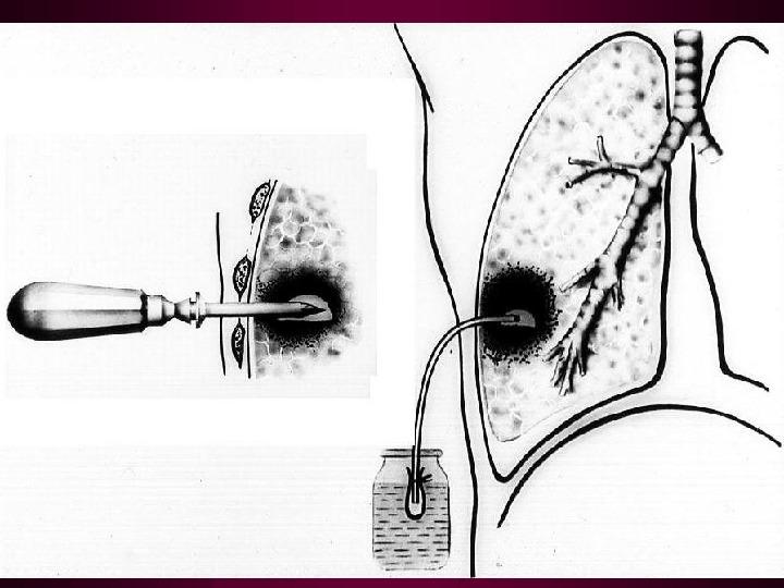 Пиопневмоторакс