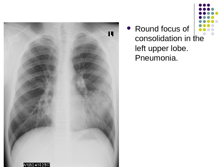 Round focus of consolidation in the left upper lobe.  Pneumonia.