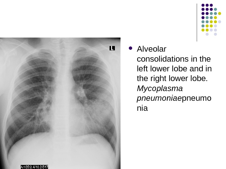 Alveolar consolidations in the left lower lobe and in the right lower lobe.  Mycoplasma