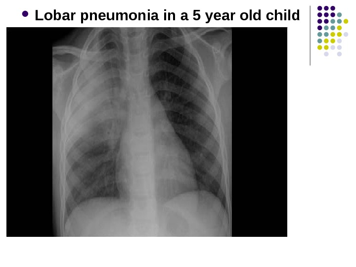 Lobar pneumonia in a 5 year old child