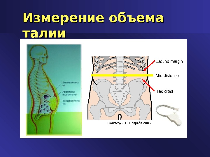 Courtesy J. P. Després 2006 Mid distance Last rib margin Iliac crest. Измерение объема талии