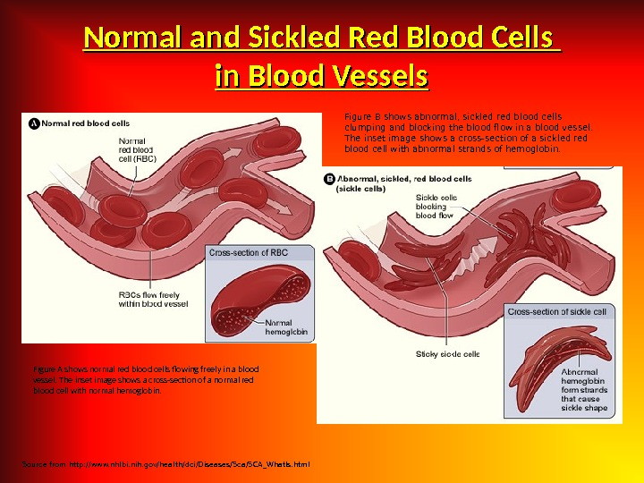 Normal and Sickled Red Blood Cells in Blood Vessels Figure A shows normal red blood cells