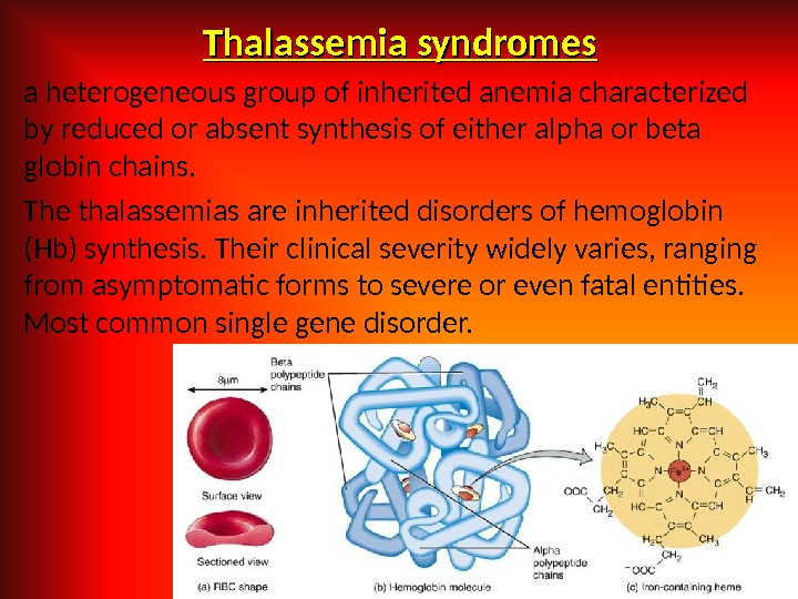 Thalassemia syndromes a heterogeneous group of inherited anemia characterized by reduced or absent synthesis of either