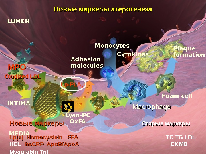 Cytokines Plaque formation Foam cell. Monocytes. LUMEN MEDIAINTIMAOxidized LDL Adhesion molecules Lp-PLA 2 C CRPCRPНовые