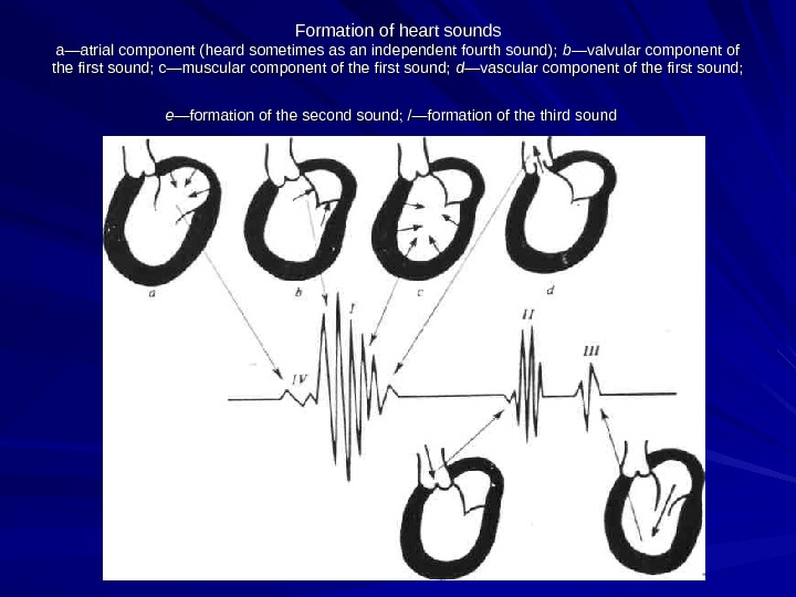 Formation of heart sounds a—atrial component (heard sometimes as an independent fourth sound);  b—b—