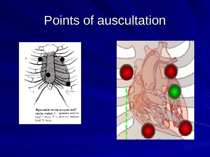 Points of auscultation