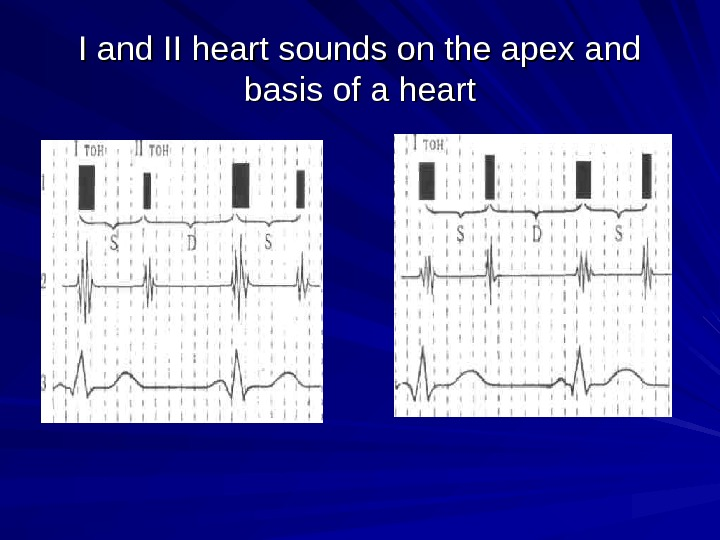 I and II heart sounds on the apex and basis of a heart