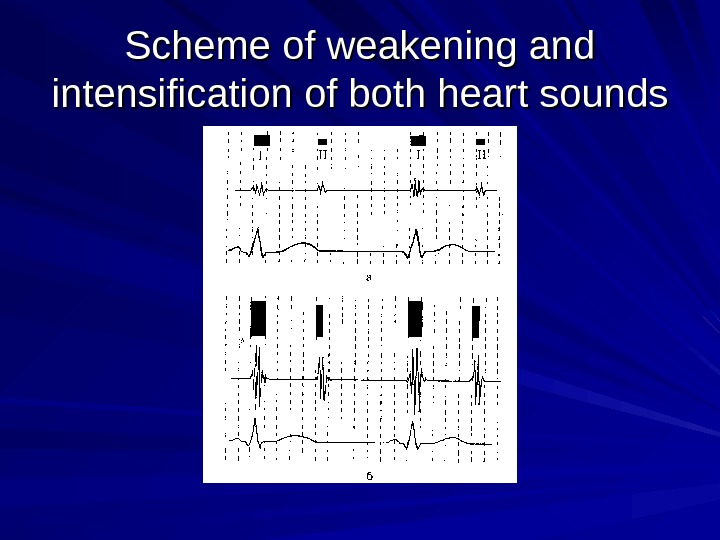 Scheme of weakening and intensification of both heart sounds
