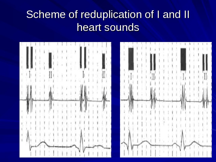 Scheme of reduplication of I and II heart sounds