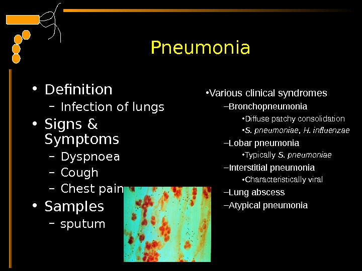 Pneumonia • Definition – Infection of lungs  • Signs & Symptoms – Dyspnoea –