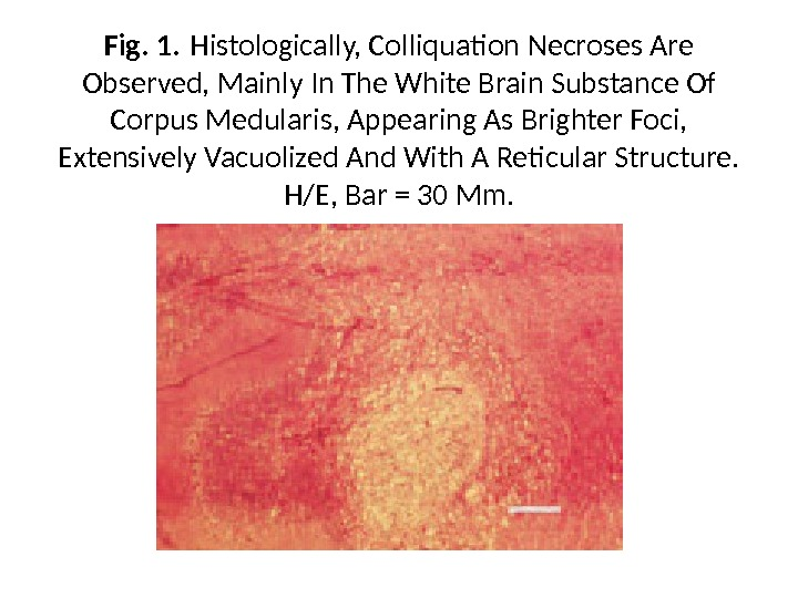 Fig. 1. Histologically, Colliquation Necroses Are Observed, Mainly In The White Brain Substance Of Corpus Medularis,
