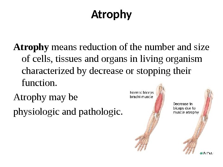 Atrophy means reduction of the number and size of cells, tissues and organs in living organism