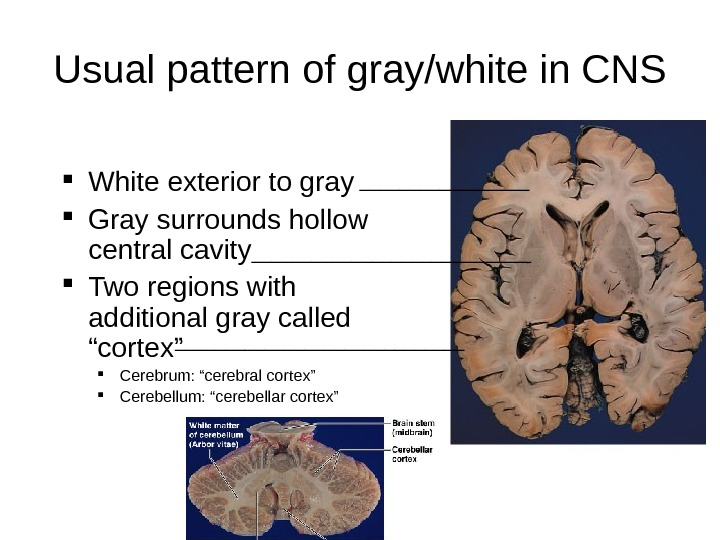 Usual pattern of gray/white in CNS White exterior to gray Gray surrounds hollow central cavity Two