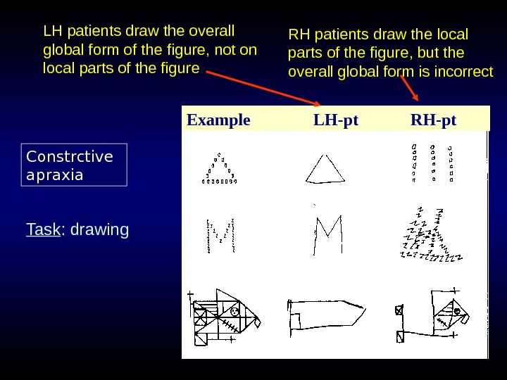 LH patients draw the overall global form of the figure, not on local parts