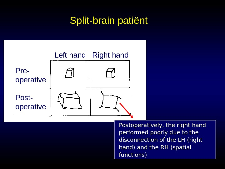 Split-brain pati ënt Left hand Right hand Pre- operative Postoperatively, the right hand performed