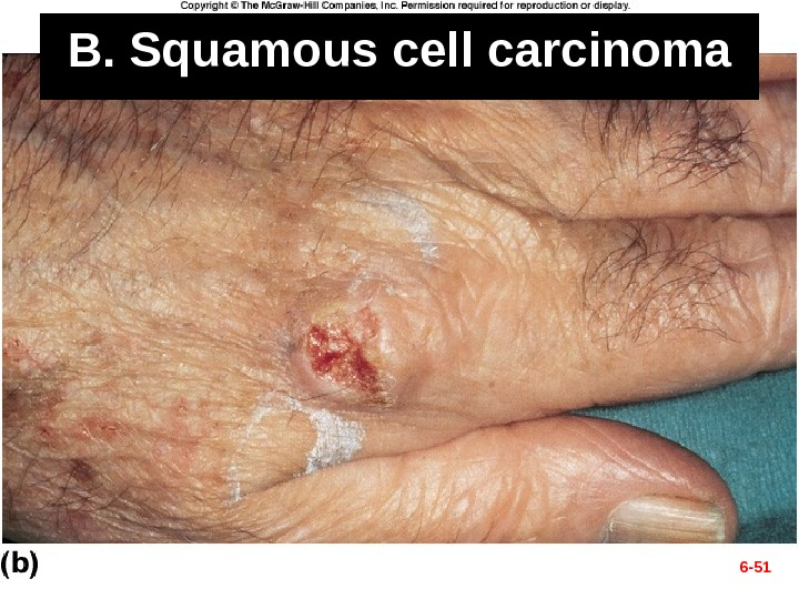 B. Squamous cell carcinoma 6 - 51