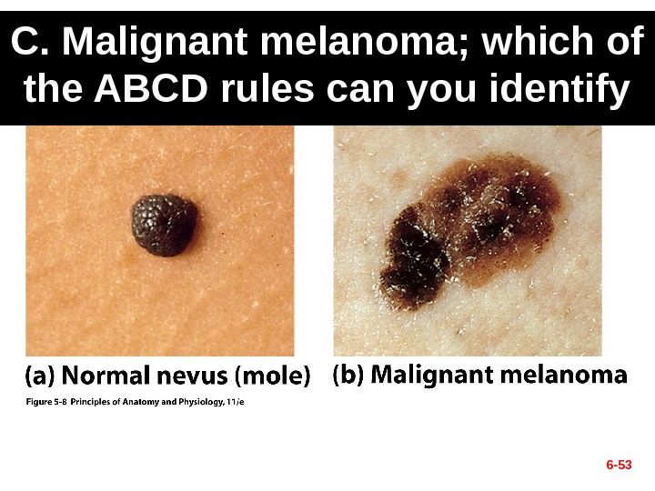 C. Malignant melanoma; which of the ABCD rules can you identify 6 - 53
