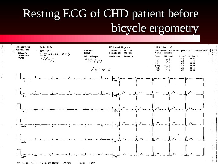 Resting ECG of CHD patient before bicycle ergometry