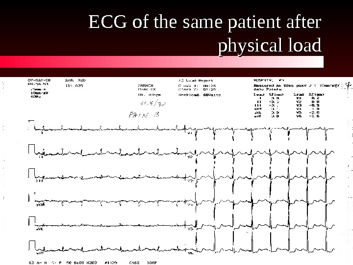 ECG of the same patient after physical load