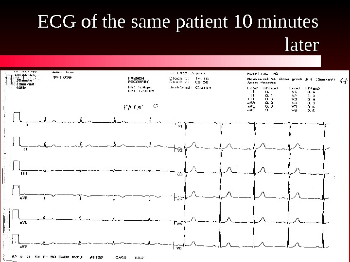 ECG of the same patient 10 minutes later