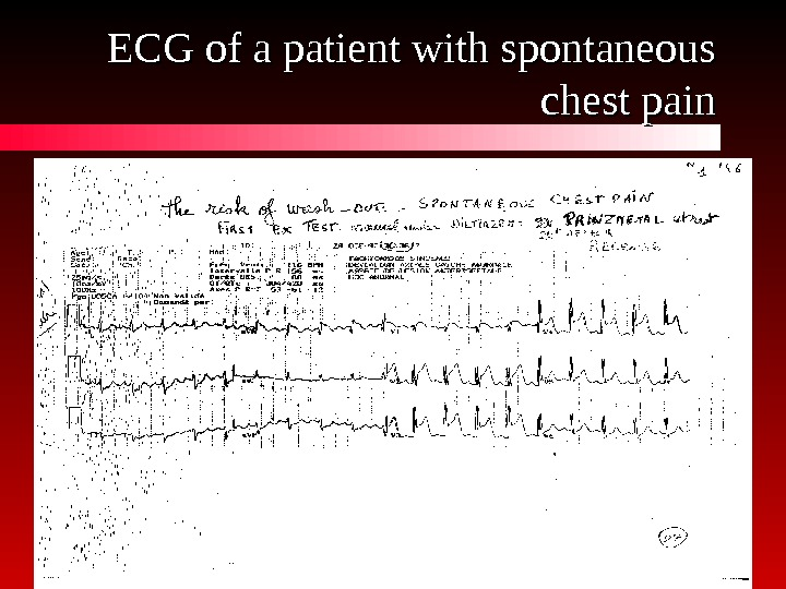 ECG of a patient with spontaneous chest pain