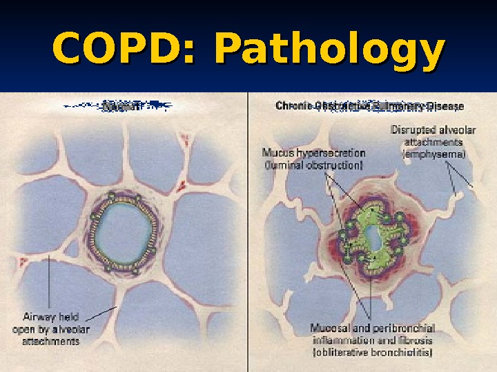 COPD: Pathology