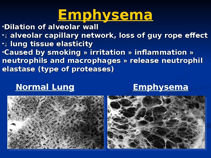 Emphysema • Dilation of alveolar wall • ↓↓  alveolar capillary network, loss of
