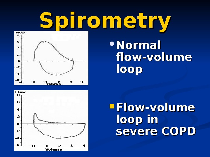 Spirometry Normal flow-volume loop Flow-volume loop in severe COPD