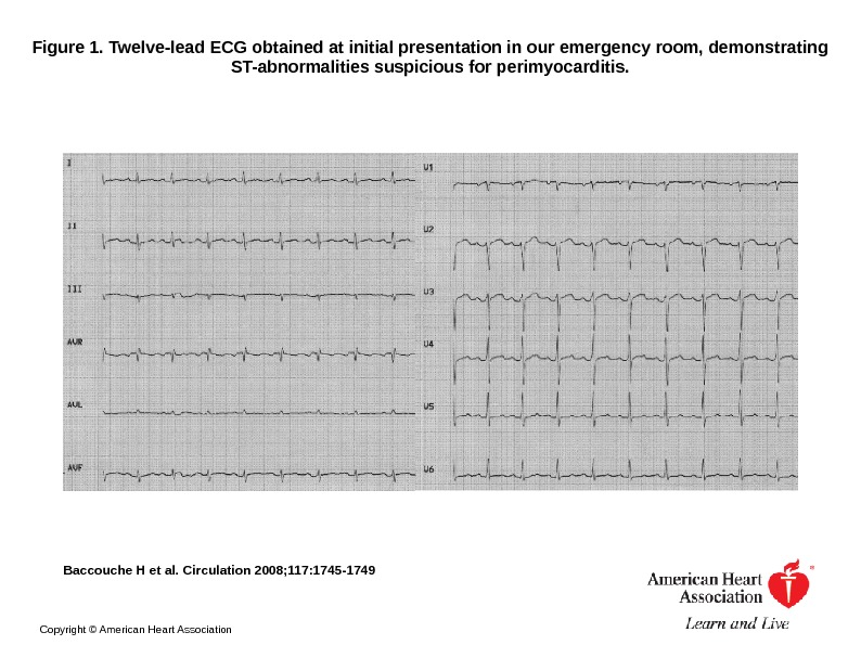 Figure 1. Twelve-lead ECG obtained at initial presentation in our emergency room, demonstrating ST-abnormalities suspicious for